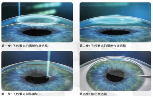 近视手术:蔡司VisuMax全飞秒激光SMILE3.0